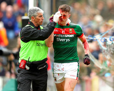 Diarmuid O'Connor with a blood injury 21/5/2017